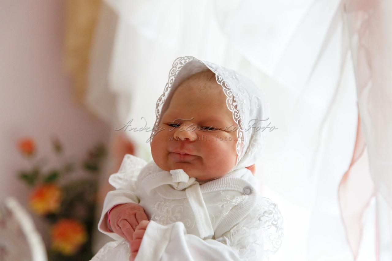 Как начинается ангина у ребенка фото
